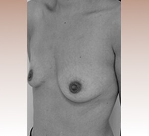 protheses-mammaires-seins-avant-chirurgie-2.jpg