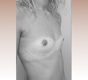 protheses-mammaires-seins-avant-chirurgie-1.jpg