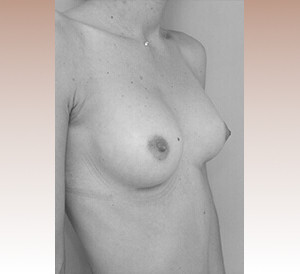 protheses-mammaires-seins-apres-chirurgie-1.jpg